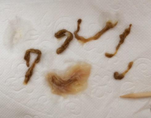 Darm Parasiten Symptome Und Behandlung Heilwege Fur Mensch